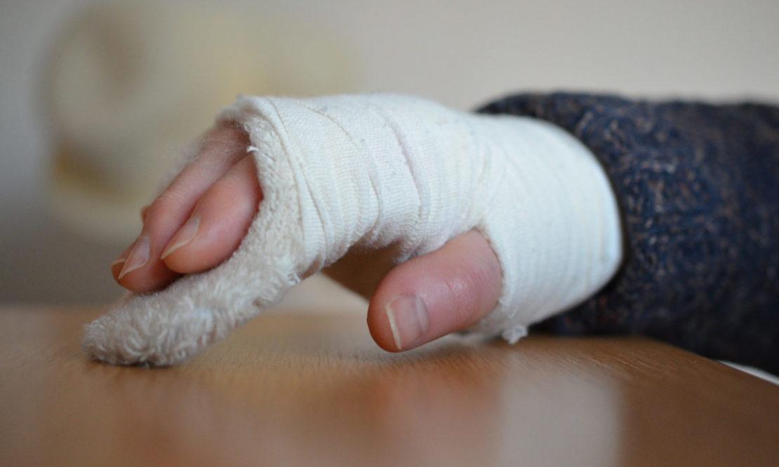 Ärzte-Unfallversicherung: Warum die Gliedertaxe so entscheidend ist